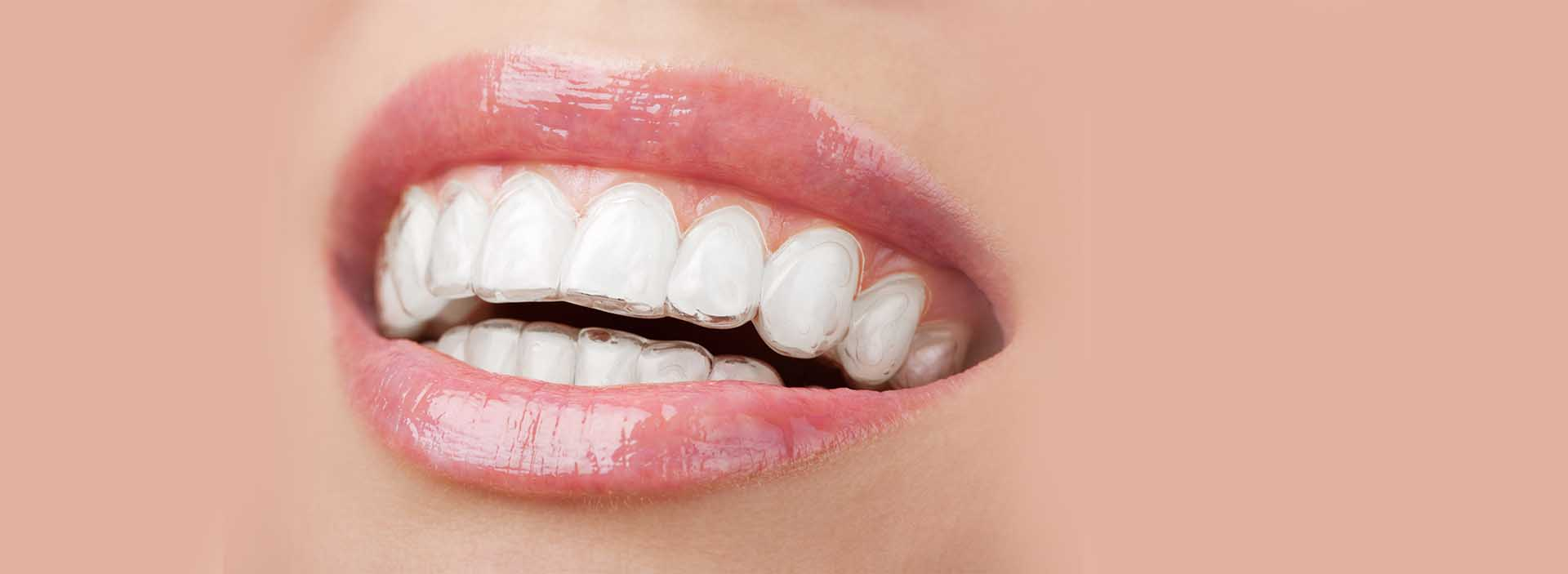 Anne O'Day Orthodontics banner